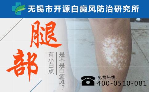 白癜风白斑和白色糠疹有哪些不同?